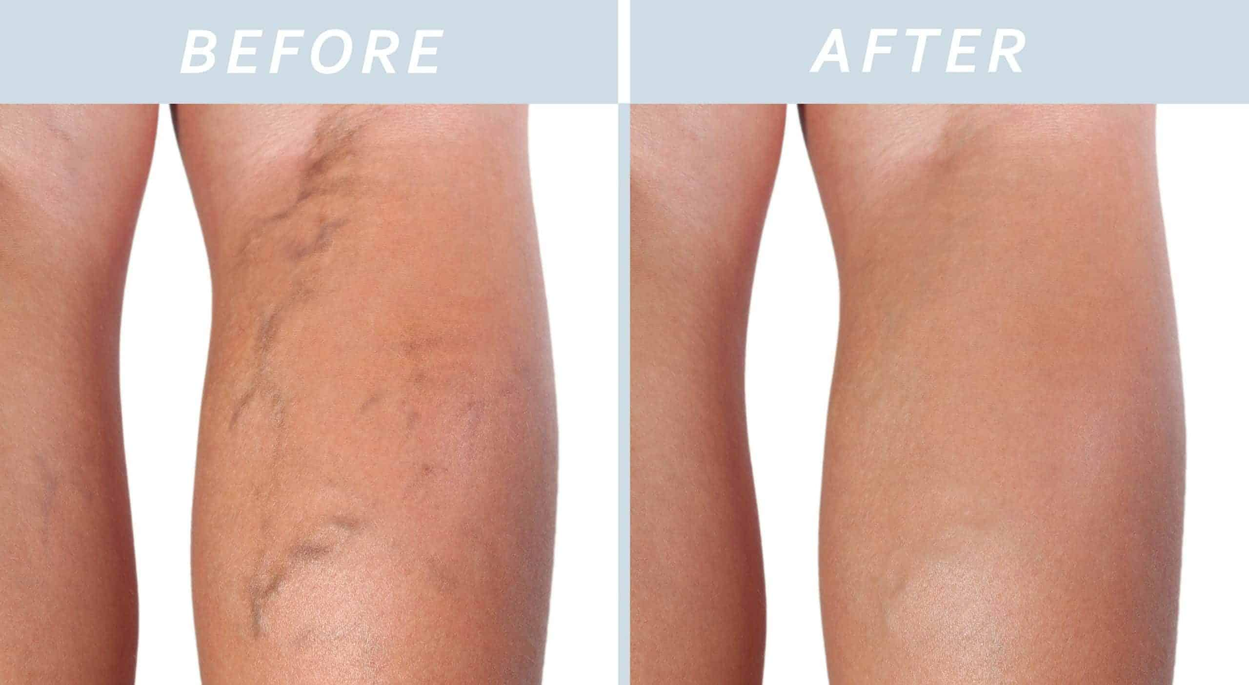 Asclera vein treatments